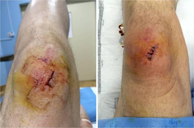 knee-wound-09-09-16